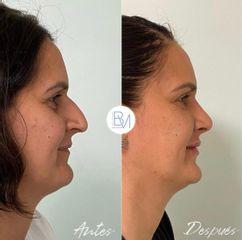 Antes y después Rinoplastia, relleno de ojeras y de labios Dra. Beatriz Moralejo