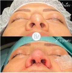 Antes y después Rinoplastia ultrasonica- Dra. Beatriz Moralejo