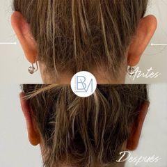 Antes y después Otoplastia - Dra. Beatriz Moralejo