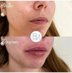Antes y después Labios con hialurónico - Dra. Beatriz Moralejo