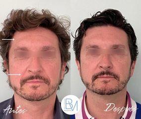 Antes y después Botox en frente y hialuronico en surcos nasogenianos - Dra. Beatriz Moralejo