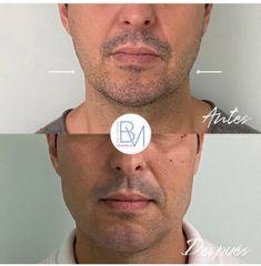 Antes y después Masculinizacion mandibular hialuronico en mandibula y menton - Dra. Beatriz Moralejo