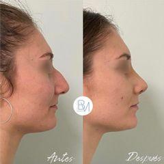 Rinoplastia ultrasonica - Dra. Beatriz Moralejo