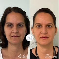 Antes y después Rinoplastia, relleno de ojeras y de labios con hialuronico - Dra. Beatriz Moralejo