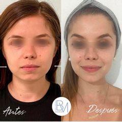 Antes y después Bichectomía - Dra. Beatriz Moralejo