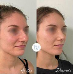 Antes y después Rinoplastia ultrasonica - Dra. Beatriz Moralejo