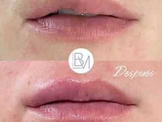 Aumento labios-739507