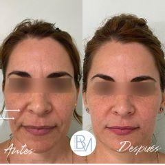 Antes y después Ácido hialurónico - Dra. Beatriz Moralejo