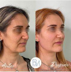 Antes y después Hilos tensores - Dra. Beatriz Moralejo