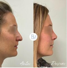 Antes y después Rinoplastia - Dra. Beatriz Moralejo