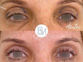 Blefaroplastia - 739529