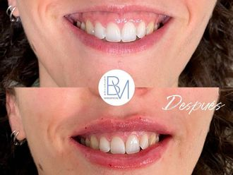Aumento labios-742180