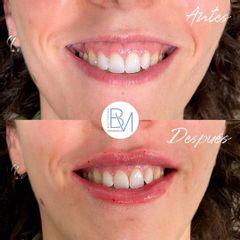 Antes y después Sonrisa Gingival con Ácido Hialurónico - Dra. Beatriz Moralejo