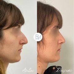 Antes y después Rinoplastia Ultrasónica - Dra. Beatriz Moralejo