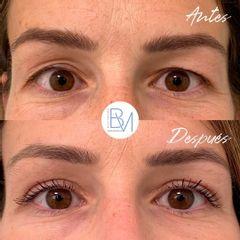 Antes y después Blefaroplastia - Dra. Beatriz Moralejo
