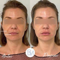 Aumento de Labios y Relleno de Surcos Nasogenianos con Ácido Hialurónico