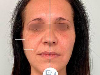 Rellenos faciales-786281