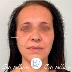 Rellenos faciales - Dra. Beatriz Moralejo