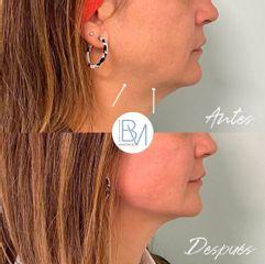 Liposucción de papada - Dra. Beatriz Moralejo