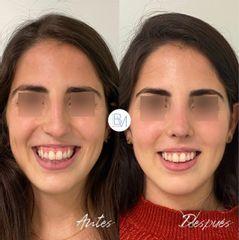 Sonrisa gingival - Dra. Beatriz Moralejo