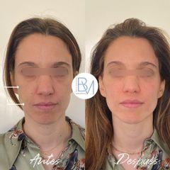 Ácido hialurónico - Dra. Beatriz Moralejo
