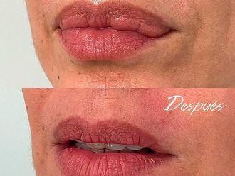 Queiloplastia - 796088