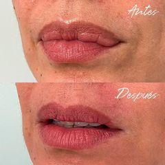 Queiloplastia - Dra. Beatriz Moralejo