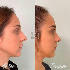 Rinoplastia - Dra. Beatriz Moralejo
