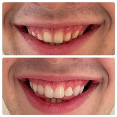 Blanqueamiento dental - Nágila Fernandes