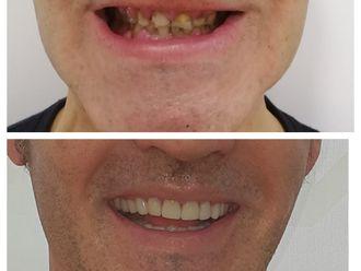 Implantes dentales - 790927