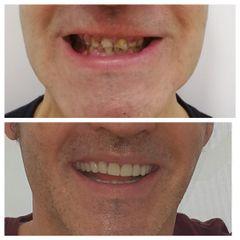 Implantes dentales - Nágila Fernandes