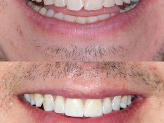 Carillas dentales - 790928