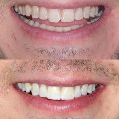 Carillas dentales - Nágila Fernandes