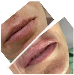 Aumento de labios - Nágila Fernandes