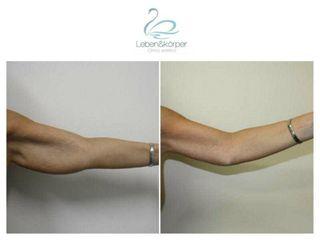Liposucción - Clínica Leben & Körper