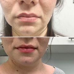 Hidratación de labios - Clínica Leben & Körper
