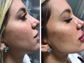 Rellenos faciales - 792941
