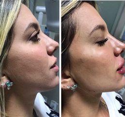 Rellenos faciales - Clínica Leben & Körper