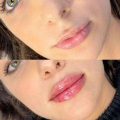 Aumento de labios - Clínica Leben & Körper