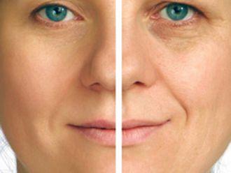 Rejuvenecimiento facial-199503