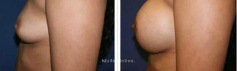 Aumento mamario prótesis redondas