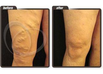 Antes y después. Varices en rodillas y muslo