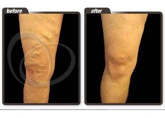 Antes y después. Varices en la rodilla