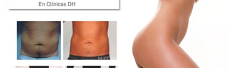 Fotos Aqualyx antes y después del tratamiento