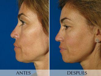 Radiofrecuencia facial-490851