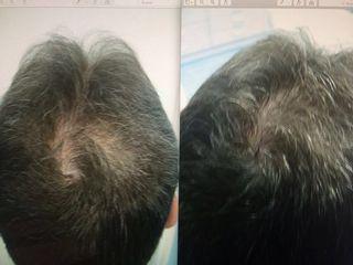 Antes y despues de terapia autologa