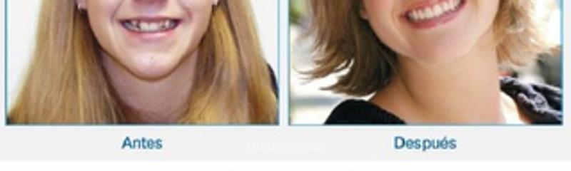 Antes y despues de ortodoncia