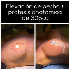 Aumento de pecho - Dr. Vernetta