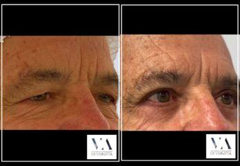 Blefaroplastia - Dr. Vernetta