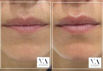 Aumento de labios - Dr. Vernetta